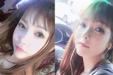韩国DA轮廓整形+脂肪填充手术后撞脸明星