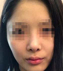 韩国丽丝塔整形金东奭做鼻子案例_术前