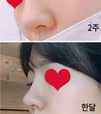 韩国丽丝塔整形金东奭鼻综合前后对比图_术后