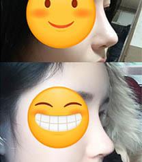 丽丝塔整形金东奭做鼻子案例前后对比照片_术后