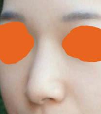 韩国丽丝塔金东奭隆鼻案例图_术前