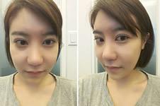 韩国加美医院朴建昱院长做眼鼻修复手术效果展示!
