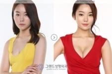 韩国高兰得整形外科规模如何?医院隆胸手术怎么样?