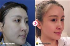 真实经历分享:丽优美医院PRP脂肪填充过程及术后恢复效果