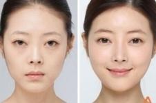 韩国高兰得自体脂肪移植手术方法解析!
