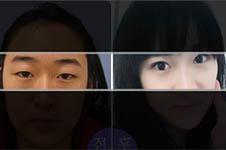 韩国开眼角手术哪家好?延世enb和美自人怎么选?