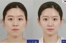 韩国ID整形医院下颌角缩小术有哪些优势特色?