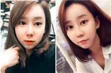 真实用户恢复过程揭秘 韩国加美割双眼皮技术