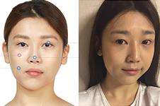 韩国JAYJUN医院做轮廓+眼鼻整形手术真人案例展示!