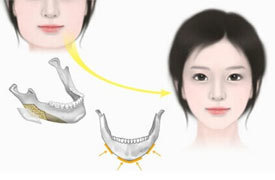 韩国美护恢复指南:面部轮廓术后护理注意事项!(二)