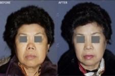 韩国JW整形外科徐万群院长告诉您鼻子整形失败如何修复!