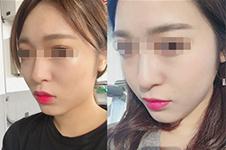 韩国美迪莹开了多久?和做轮廓的ID整形比怎么样?