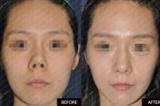 韩国靠谱整形医院分析(八):4月31与O&young隆鼻案例对比!
