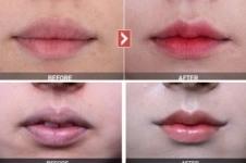 韩国女神唇部整形,拥有迷人微笑唇不再是梦想!