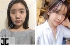 韩国JAYJUN整形外科怎么样,都有哪些项目?