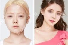 在JAYJUN医院做了下颌角+鼻修复+脂肪填充,术后像极了baby!!