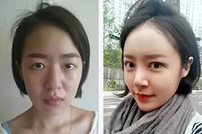 韩国眼睛修复好医院收集(十):女神VS秀美颜