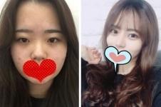 韩国麦恩整形医院眼鼻怎么样,术后效果自然吗?