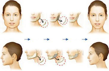 韩国ID整形医院的高技术下颌角矫正,真人案例超酷来袭!