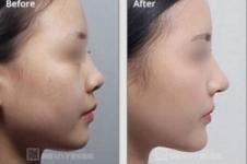 韩国cocoline与mvp隆鼻手术大PK,谁才是当下正流行?