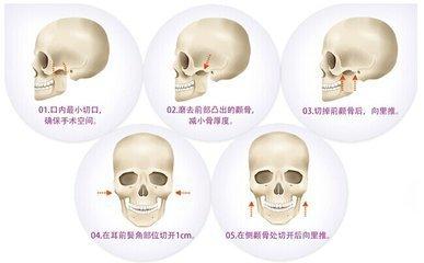 真人案例:韩国ID做了颧骨,让我改头换面!