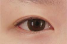 双眼皮手术有几种?埋线法和切开法如何选择?