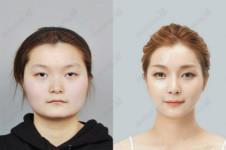 韩国ID医院V-line手术效果如何?有真人对比图吗?