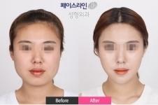 韩国菲斯莱茵面部轮廓整形怎么样?优势特点有哪些?