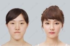 解析:韩国ID医院双鄂手术优势特点有哪些?