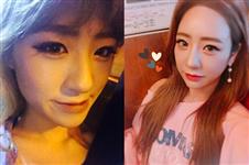 在韩国ID医院做双鄂整形手术 恢复六个月后拥有时尚小V脸