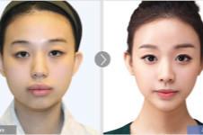 埋线双眼皮能保持多久?faceline强力埋线法告诉你!