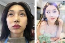 """韩国DA整形外科轮廓手术出新篇,颧骨""""移动术""""有何不同?"""
