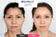 faceline颧骨缩小术后脸会下垂吗?有没有真人案例?