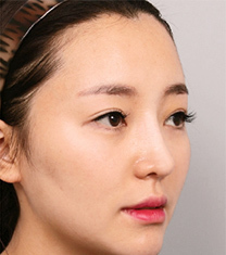 韩国然美之鼻梁+鼻尖+驼峰鼻整形案例_术后