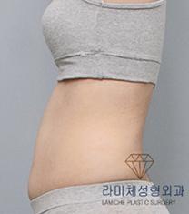 韩国然美之整形腰腹吸脂案例对比图_术前
