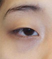 韩国然美之双眼皮+眼型矫正提肌案例图片_术前