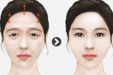 韩国ID医院特色提眉术,打造童颜流行新趋势!