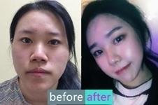 韩国cbk整形外科崔凤均双鄂手术,第一眼美女养成记