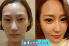 韩国如妃整形外科轮廓手术后记