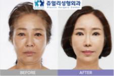 韩国珠儿丽面部提升手术价格是多少,效果如何?