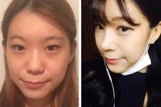 案例解析:韩国然美之眼鼻综合整形术后恢复日记!