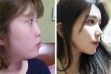整形后记:韩国然美之鼻综合术后恢复期真实案例展示!