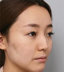 韩国然美之鼻梁+鼻尖+驼峰鼻整形案例_术前