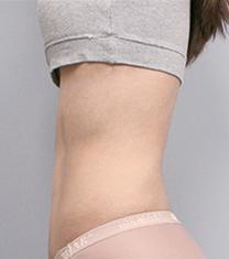 韩国然美之整形腰腹吸脂案例对比图_术后