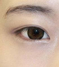 韩国然美之双眼皮+眼型矫正提肌案例图片_术后