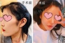 韩国然美之下颌角整形优势特色有哪些,案例效果怎么样?
