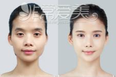 GNG医院VS韩国爱我颧骨缩小手术哪家效果更出众?