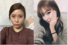 韩国然美之鼻综合真人案例分析+手术细节分享!