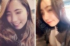 案例图分享:韩国GNG整形医院假体隆鼻恢复过程实例!