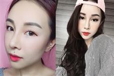 揭秘韩国灰姑娘整形医院驼峰鼻矫正真人案例恢复日记